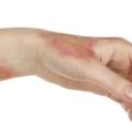 Чим можна лікувати хімічні опіки шкіри?