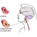 Дисциркуляторна енцефалопатія: симптоми і лікування