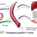 Ефективні народні засоби від цукрового діабету 2 типу