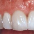 Як самостійно відновити емаль зубів?