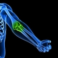 Методи лікування раку кісток