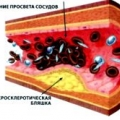 Патогенез і лікування облітеруючого атеросклерозу судин нижніх кінцівок