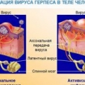 Чим можна лікувати герпес на губах при вагітності?