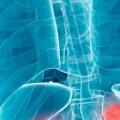 Рак нирки: симптоми, стадії, лікування, прогноз