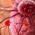 Симптоми раку