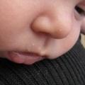 Везикулопустулез новонароджених: симптоми і лікування